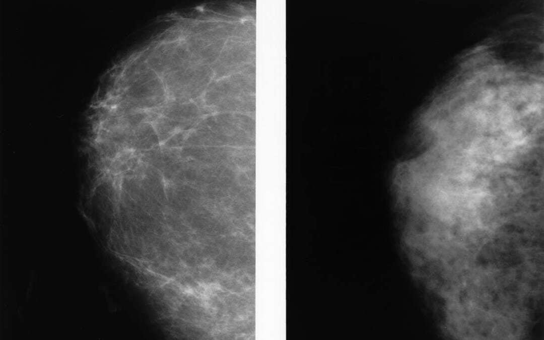 Dense breast tissue: All you need to know