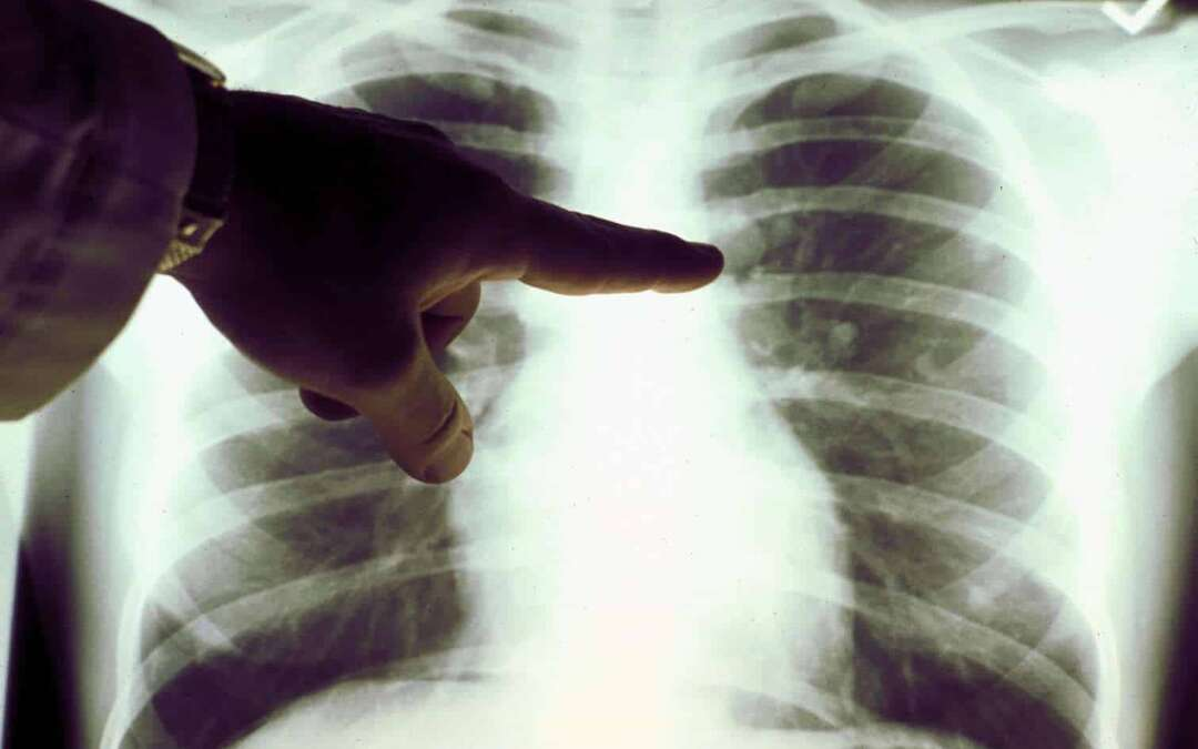 Medical Error: This Lung Cancer Tumor Was Actually a Tiny Toy Cone Inhaled 40 Years Ago