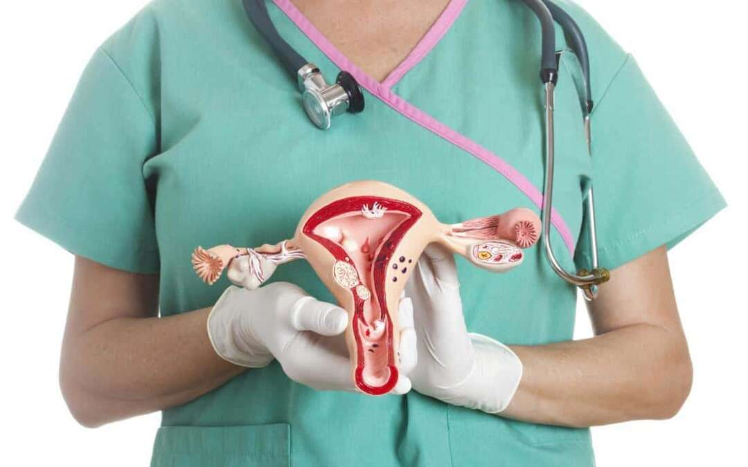 Type 2 diabetes risk four times higher in women with PCOS