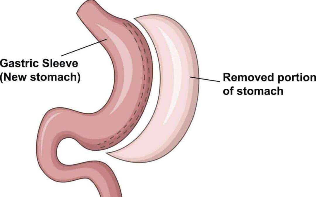 What to eat and avoid on the gastric sleeve diet