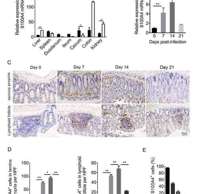 S100A4 contributes to colitis development by increasing the adherence of Citrobacter rodentium in intestinal epithelial cells