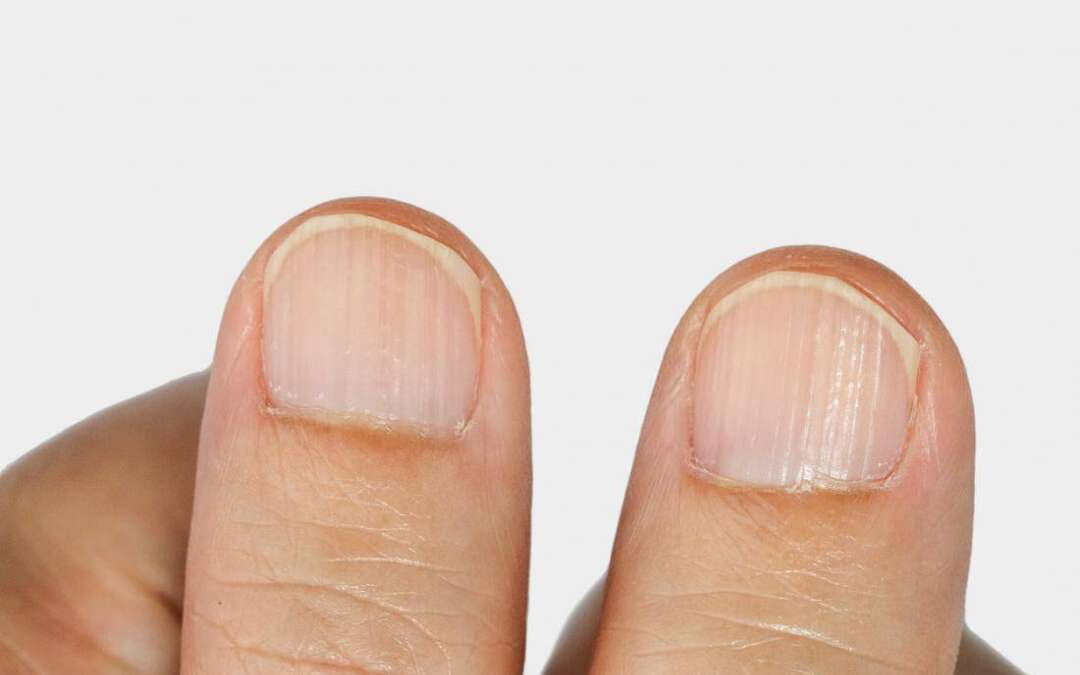 All you need to know about ridges in fingernails