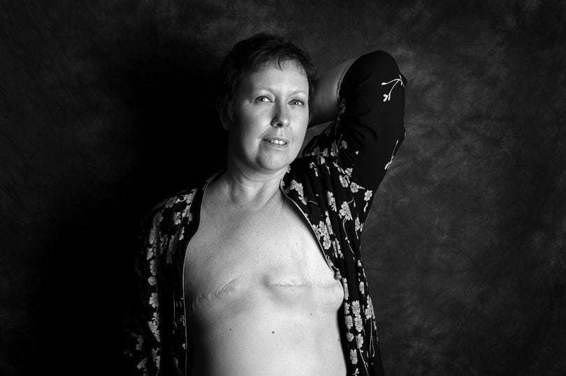 Brave breast cancer sufferers show their mastectomy scars in powerful images to prove they won't let disease define them