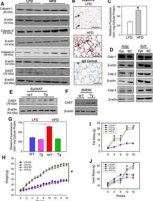 Calpain Inhibition Attenuates Adipose Tissue Inflammation and Fibrosis in Diet-induced Obese Mice