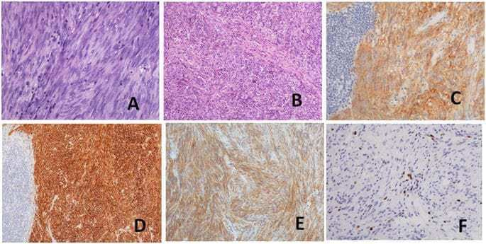 Clinicopathological and molecular characteristics of synchronous gastric adenocarcinoma and gastrointestinal stromal tumors