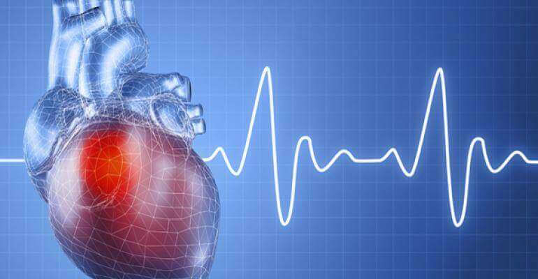 Heart Attack Survivors Less Likely to Stay Employed After One Year
