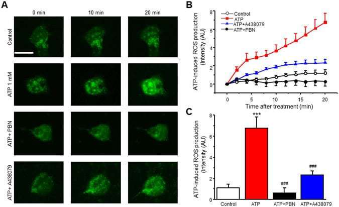Neuronal P2X7 receptor-induced reactive oxygen species production contributes to nociceptive behavior in mice