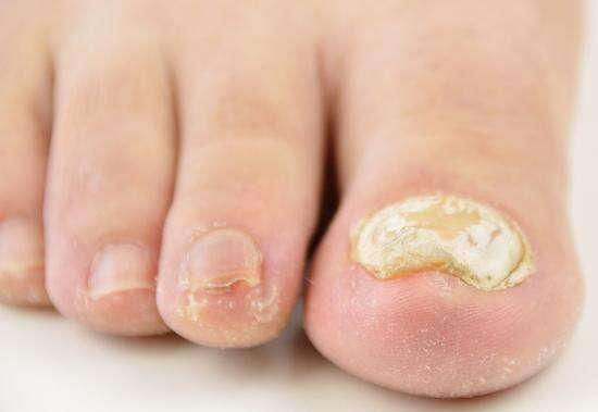 Why do toenails become thick?